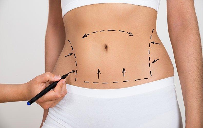Cosmetologia associada a eletroterapia aplicada ao pré e pós-operatório de cirurgia plástica