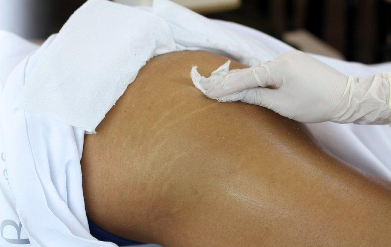 Estrias OFF: Estratégia Biotecnológica de Excelência no Tratamento de peles estriadas.