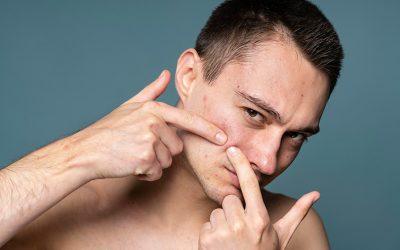 A Alimentação tem Interferência Direta na Acne?
